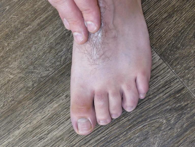 Schweißfüße behandeln - Die Füße mit einer entsprechenden Fußcreme eincremen