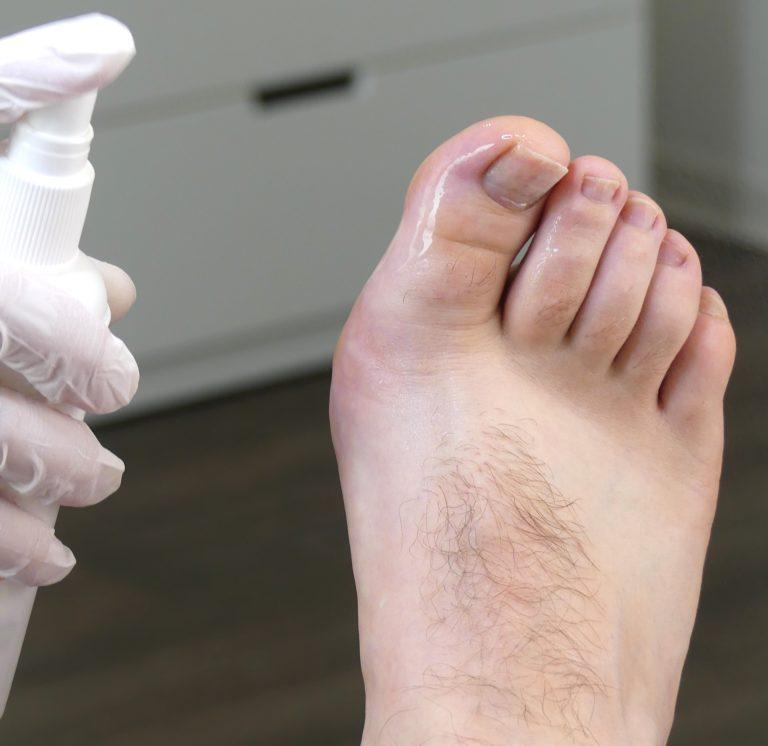 Schweißfüße behandeln mit einem Fußdeo