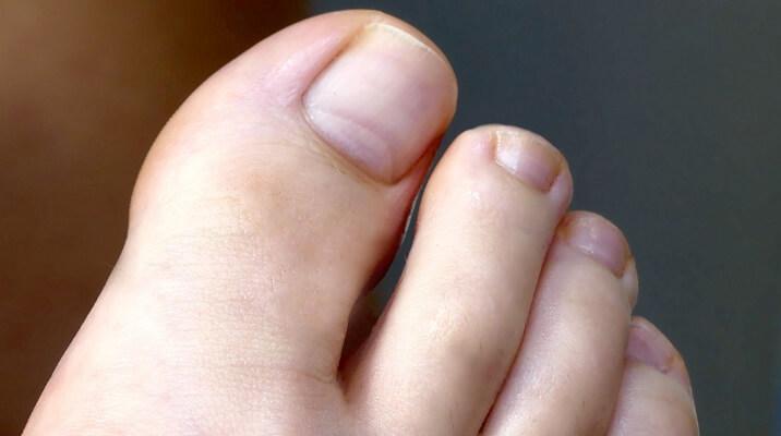 Der richtige Nagelschnitt an den Zehennägeln
