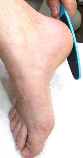 Hornhaut feilen um schöne Füße zu bekommen