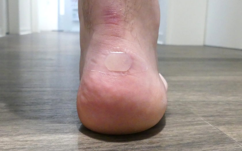 Eine Blase am Fuß
