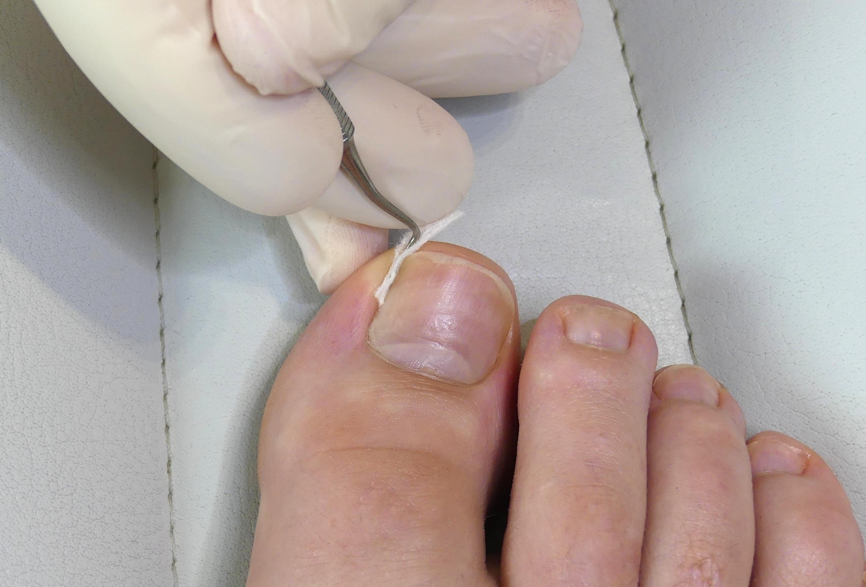 Entfernen zehennagel Eingewachsener Zehennagel: