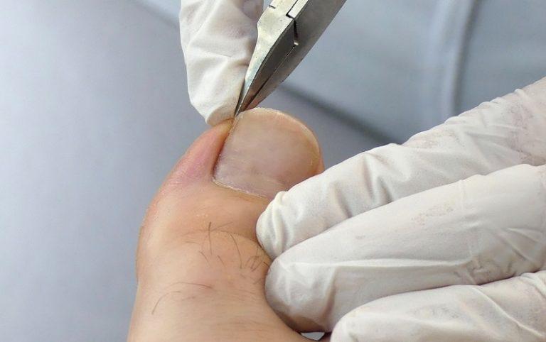 Eingewachsenen Zehennagel mit einer Eckenzange behandeln