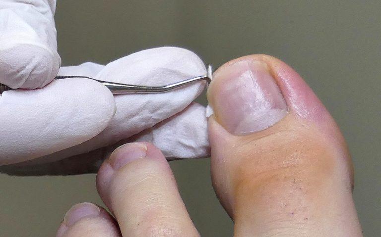 Nagel tamponieren am Großzehennagel