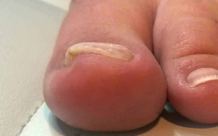 Eingewachsener Zehennagel an der Großzehe