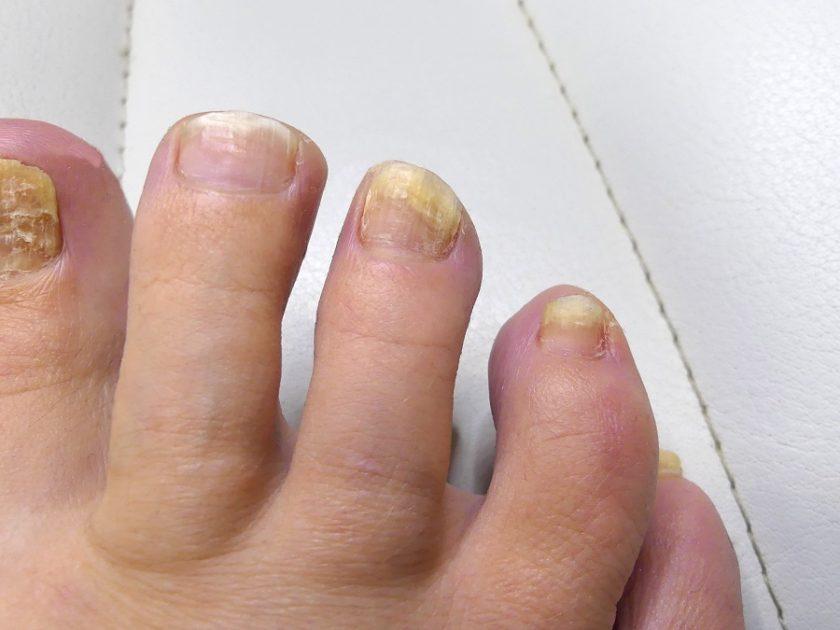 Nagelpilz an den kleinen Zehen
