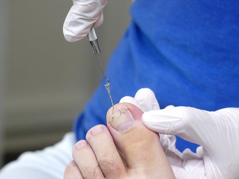 Nagelspangentherapie bei der medizinischen Fußpflege
