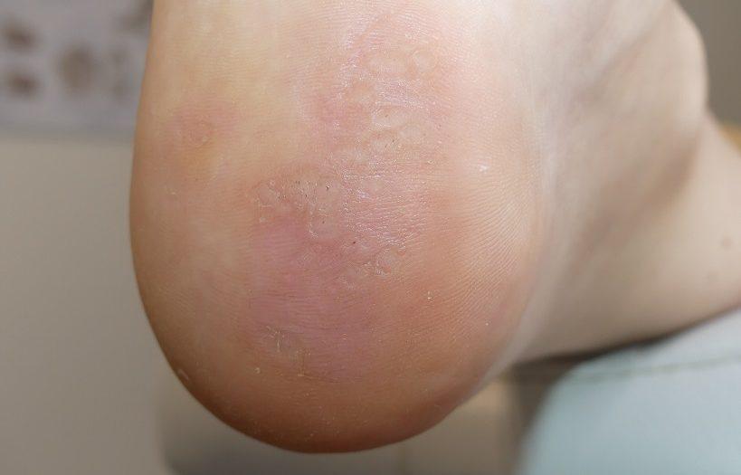 Warzen an der Fußsohle - verursacht durch Viren