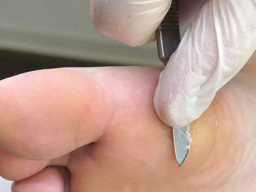 Hornhaut entfernen mit Hornhautweicher