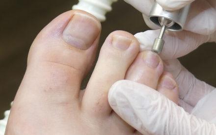 Nägel kürzen mit einem Pediküregerät