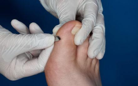 Skalpelltechnik Fußpflege