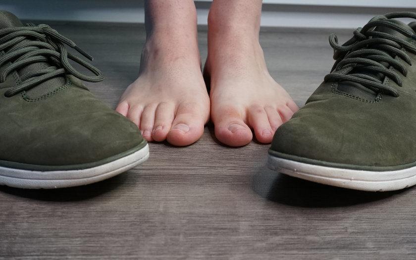 Die besten Mittel gegen Fußpilz