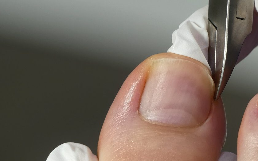 Eckenzange Fußpflege Anwendung