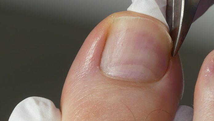 Wie du die Nagelecken bei eingewachsenen zehennägeln schneiden solltest