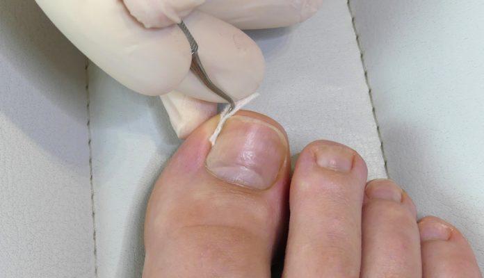 Eingewachsenen Zehennagel mit einer Tamponade behandelb