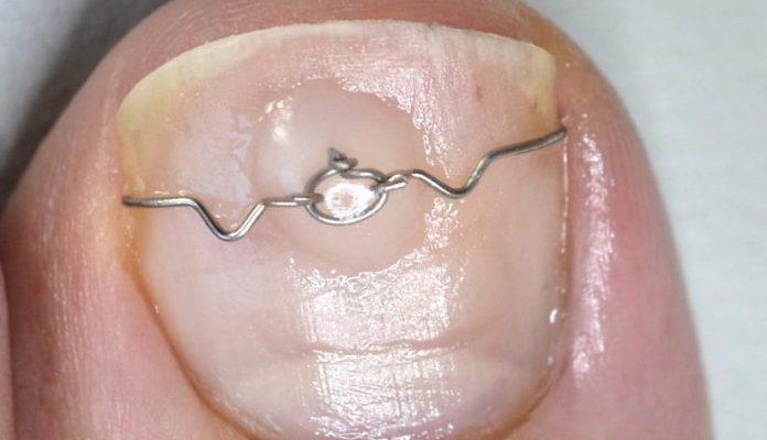 Eingewachsenen Zehennagel behandeln mit einer Nagelspange