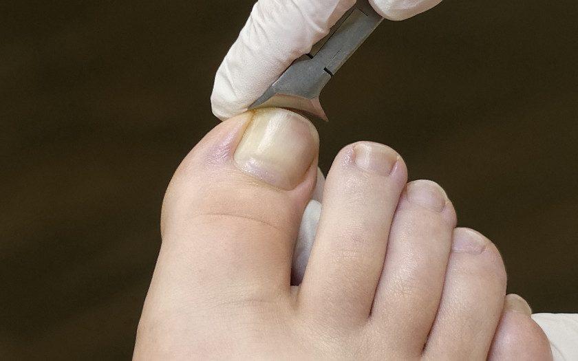 Eckenzange Anwendung Fußpflege