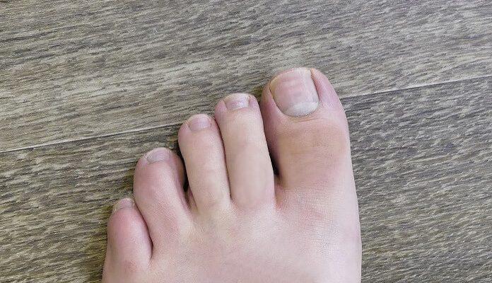 Fußnägel richtige Form und Länge