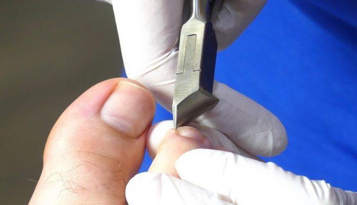 Zehennägel schneiden bei einer Pediküre