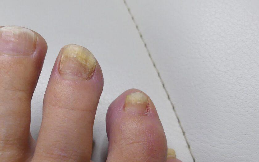 so-erkennst-du-nagelpilz