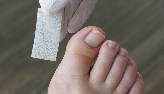 Behandlung eingewachsener Nagel mit Ligasano