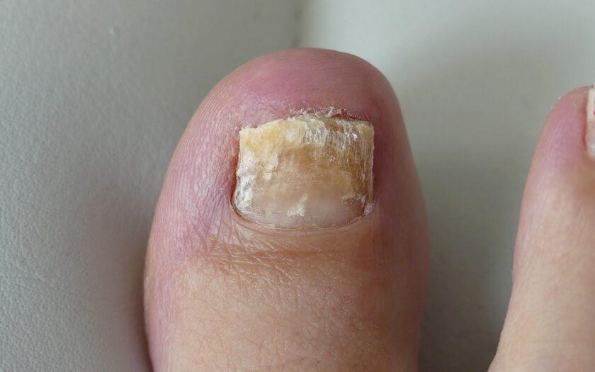 wie-erkenne-ich-nagelpilz