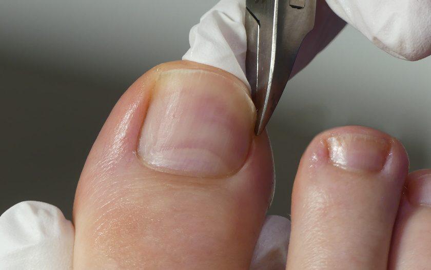 eingewachsenen Nagel schneiden
