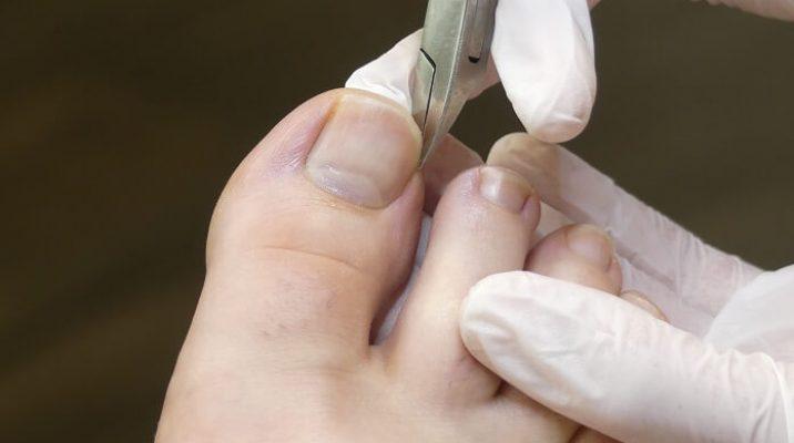 Nägel schneiden mit der Eckenzange